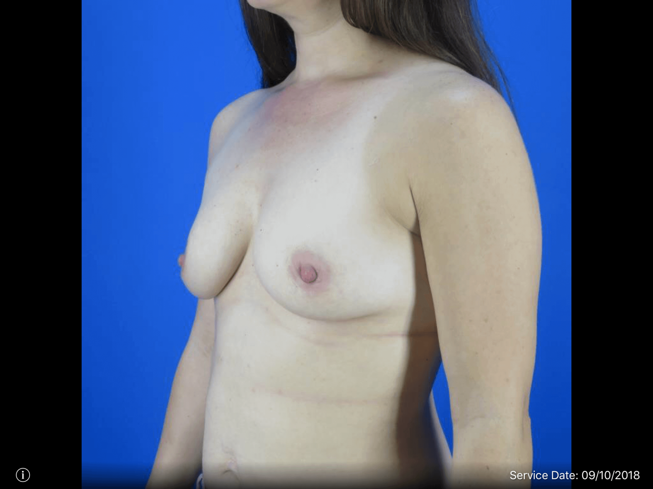 Partial Side View Before Breast Augmentation