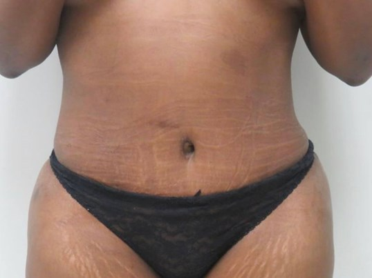 Front View of Tummy Tuck 2 Months Post Tummy Tuck