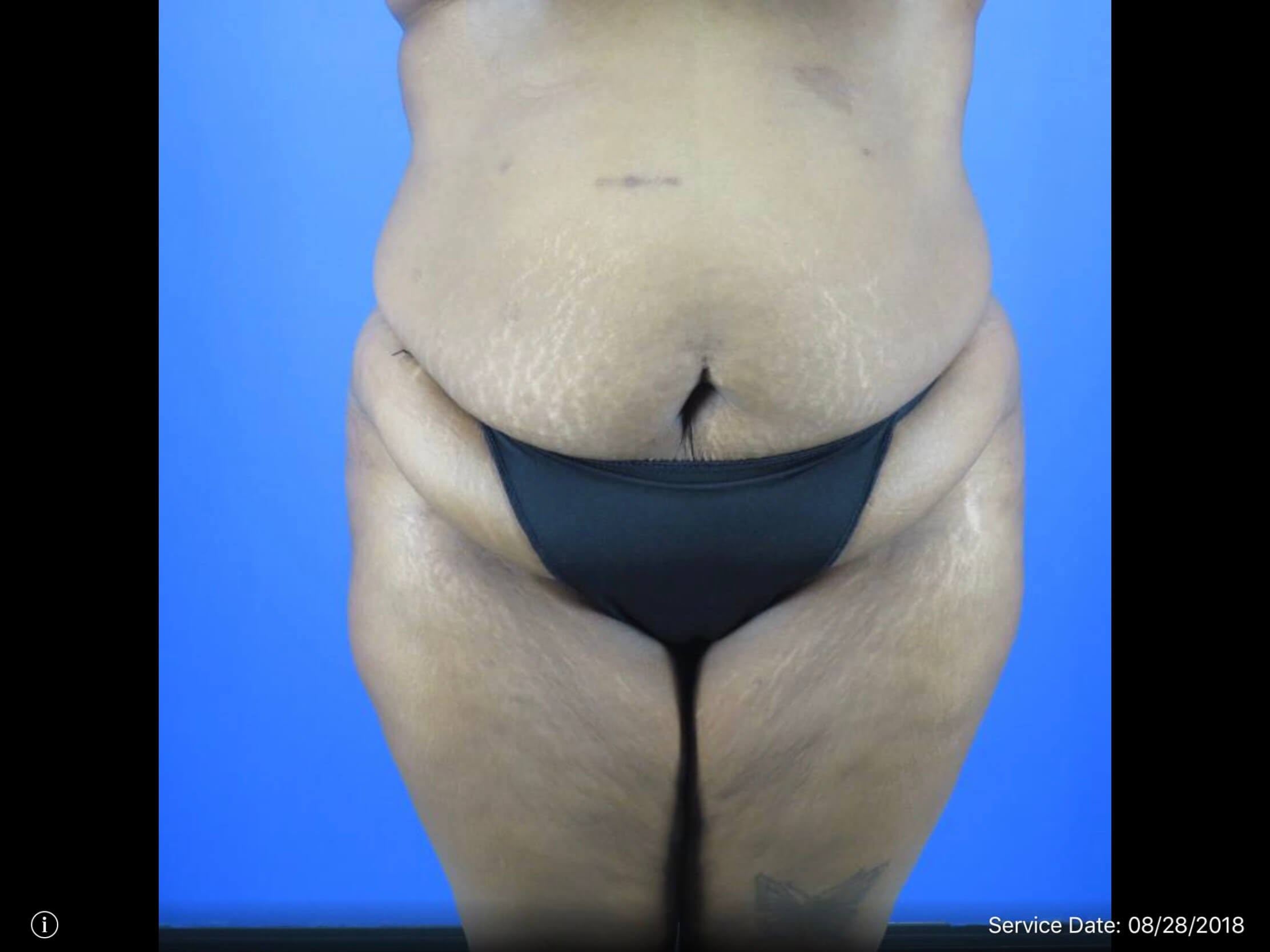 Front View of Tummy Tuck Before Tummy Tuck