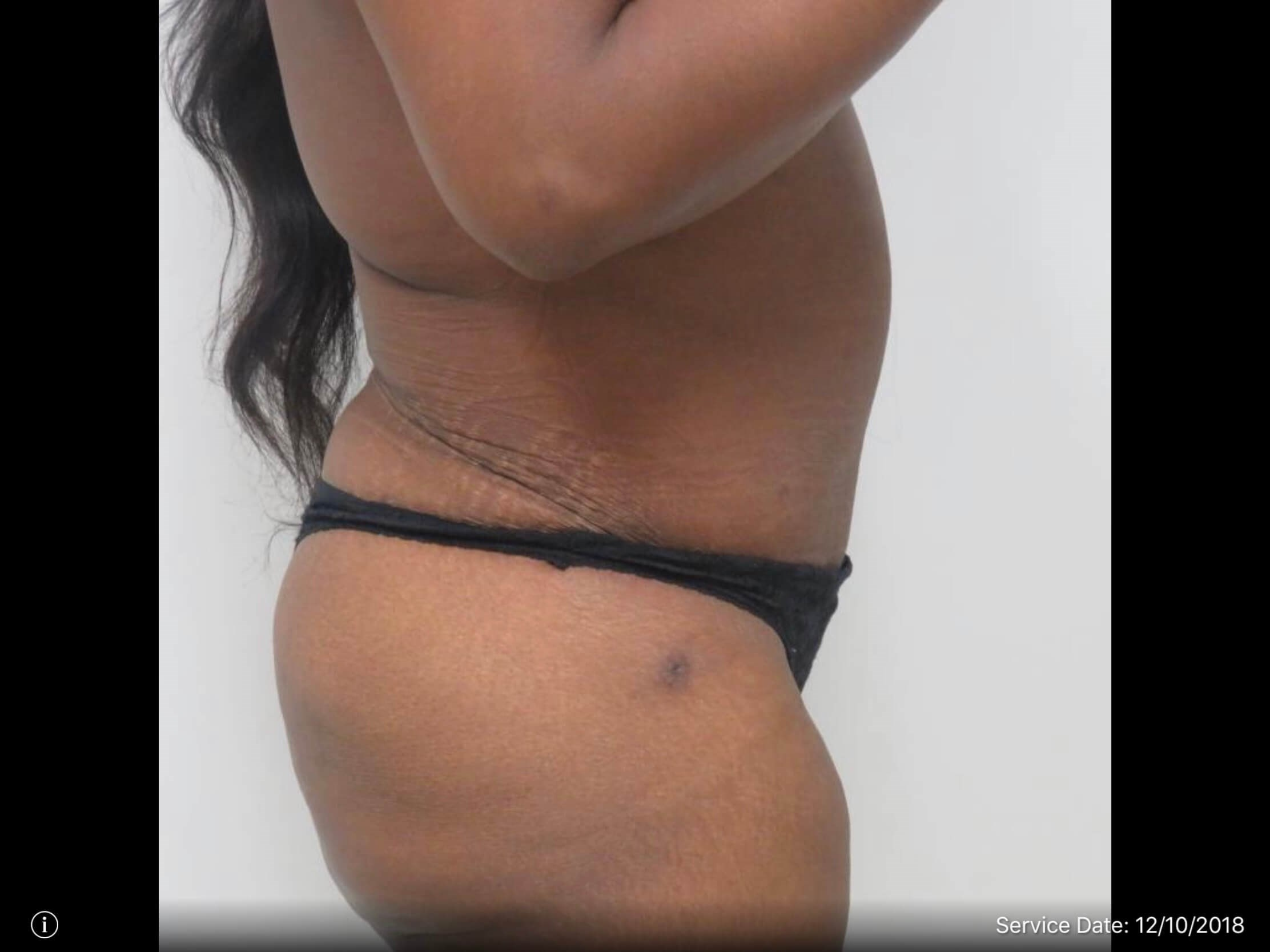 Side View of Tummy Tuck After Tummy Tuck Procedure