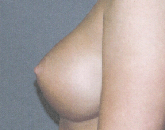 Side View Breast Augmentation 3 Months Post BAM Augmentation