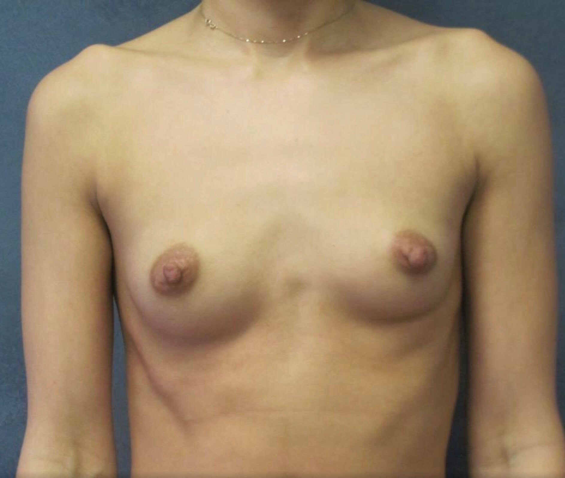 Front View Breast Augmentation Before Breast Augmentation