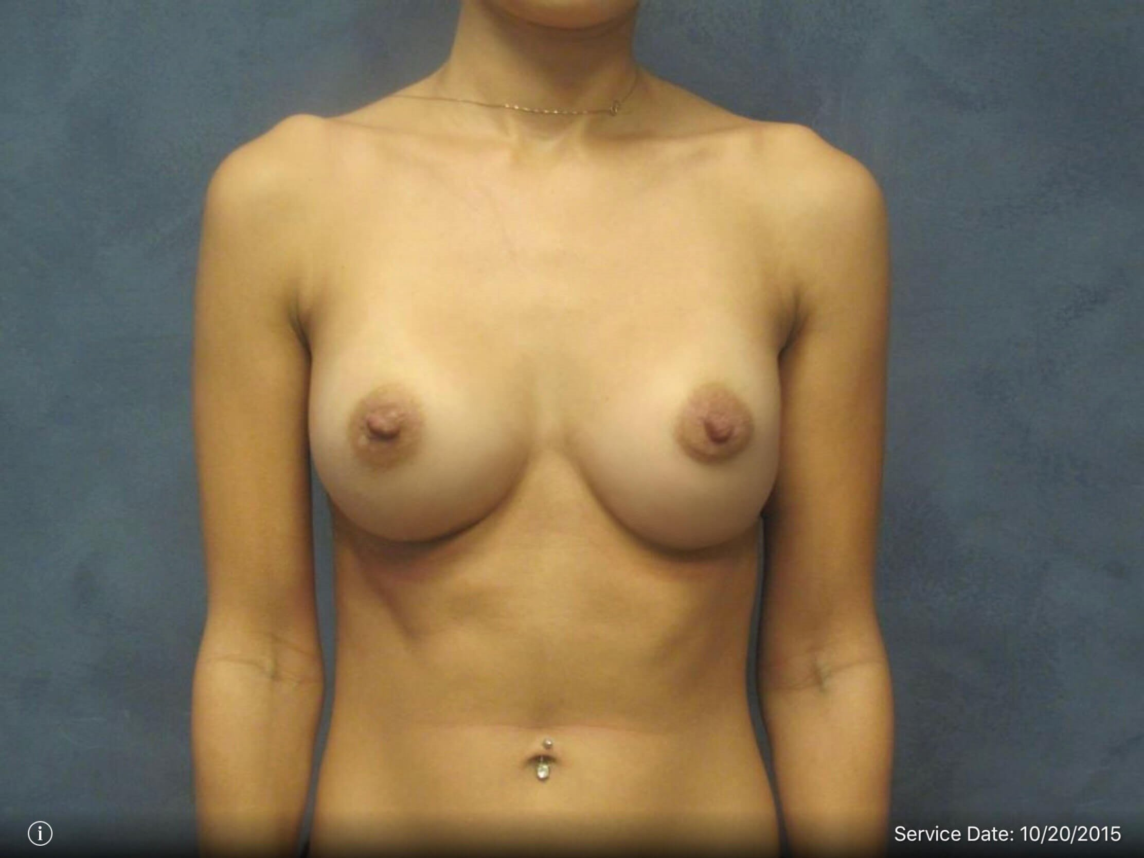 Front View Breast Augmentation 3 Months Post Augmentation