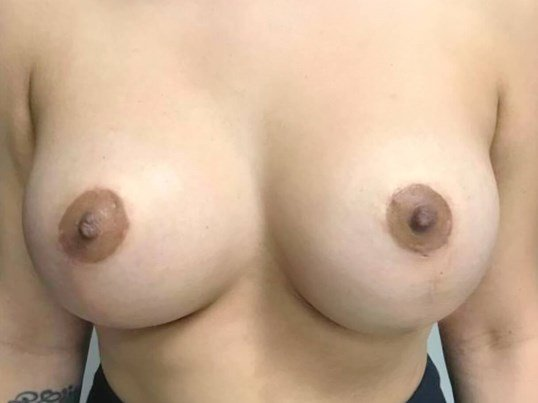 Breast Lift Front View 3 Months After Breast Lift