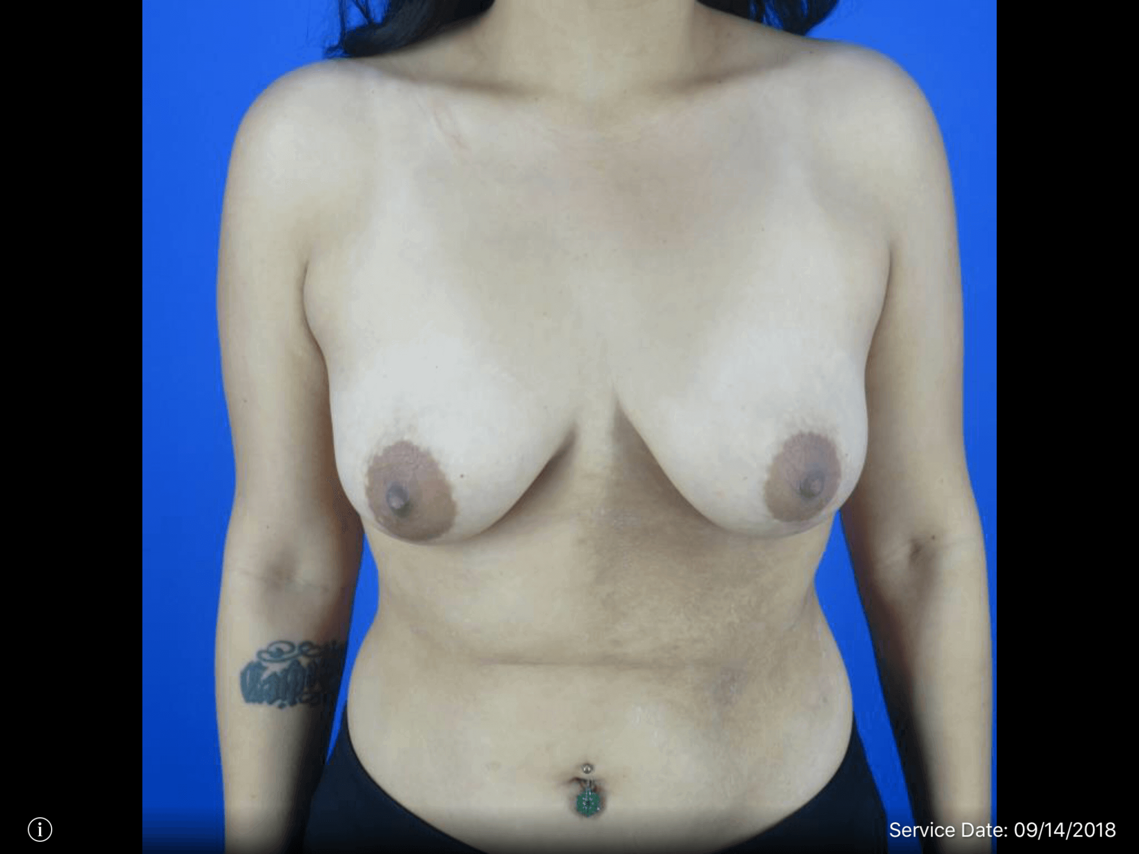 Breast Lift Front View Before Breast Lift