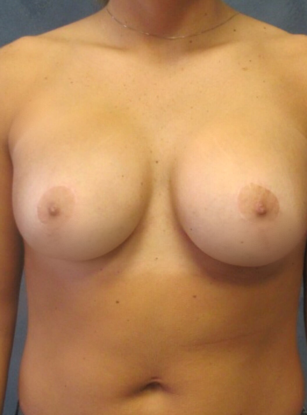 Breast Reduction / Revision After Breast Revision