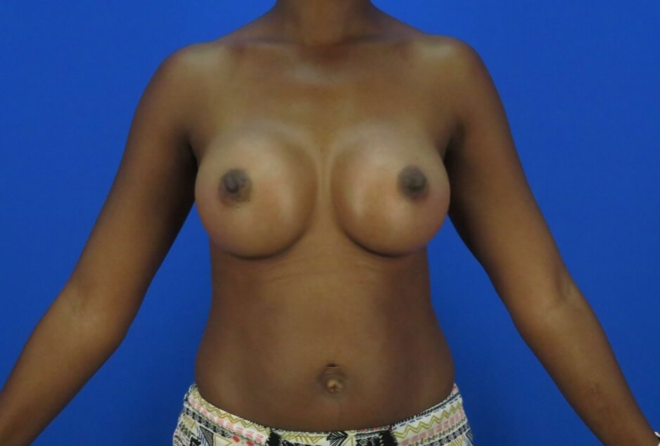 Front View Breast Augmentation 3 Months Post Procedure
