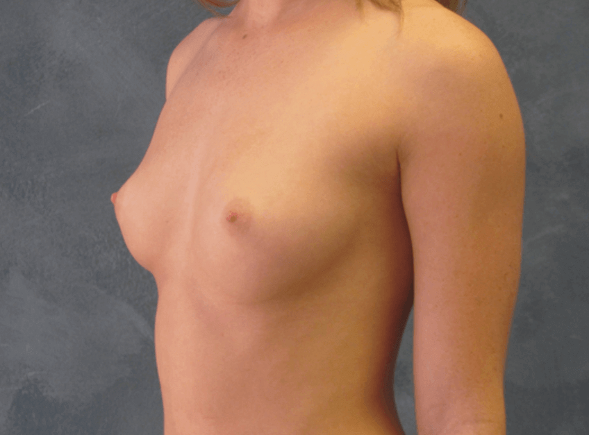 Side Profile Before Breast Augmentation