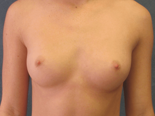 Front View Breast Augmentation Before Breast Augmenation