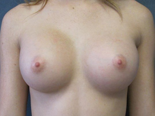 Front View Breast Augmentation 3 Month After Breast Aug