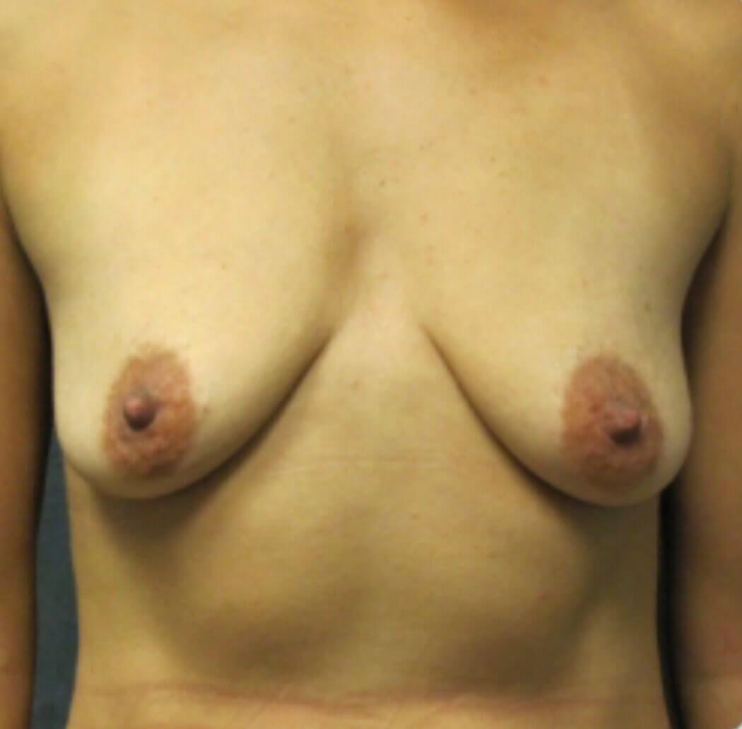 Front View of Breast Lift Before Breast Lift