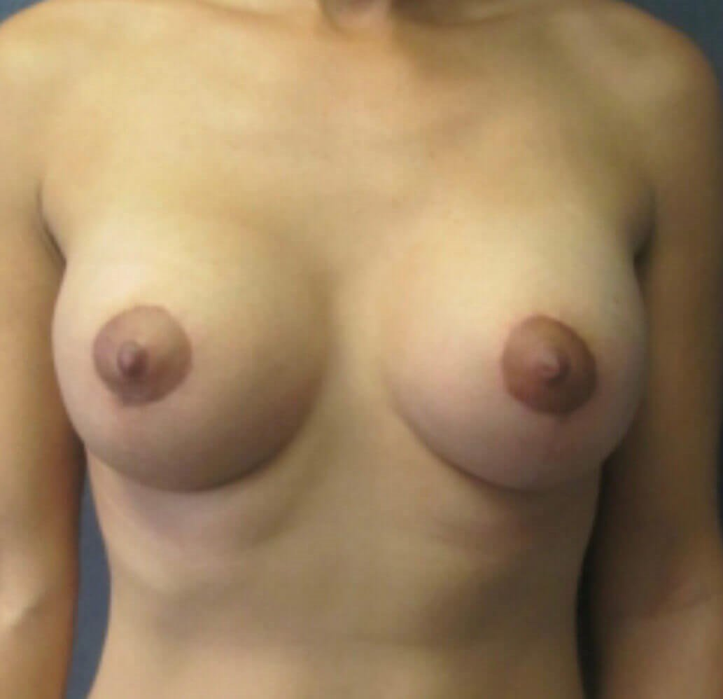 Front View of Breast Lift 3 Months After Breast Lift