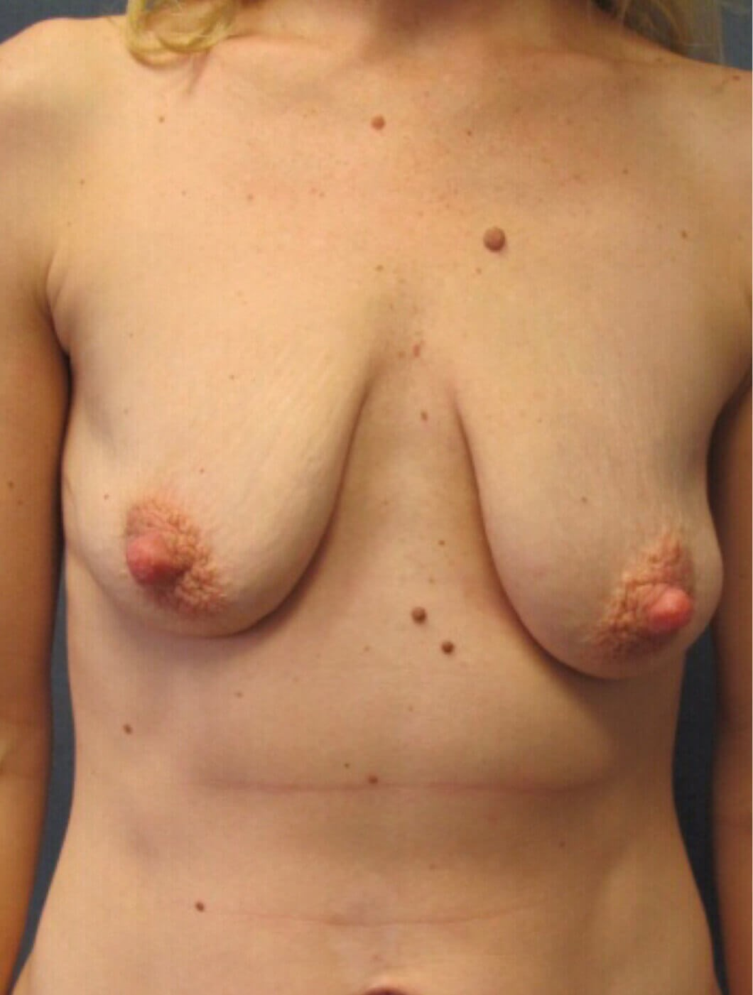 Front BAM with Breast Lift Before Breast Lift