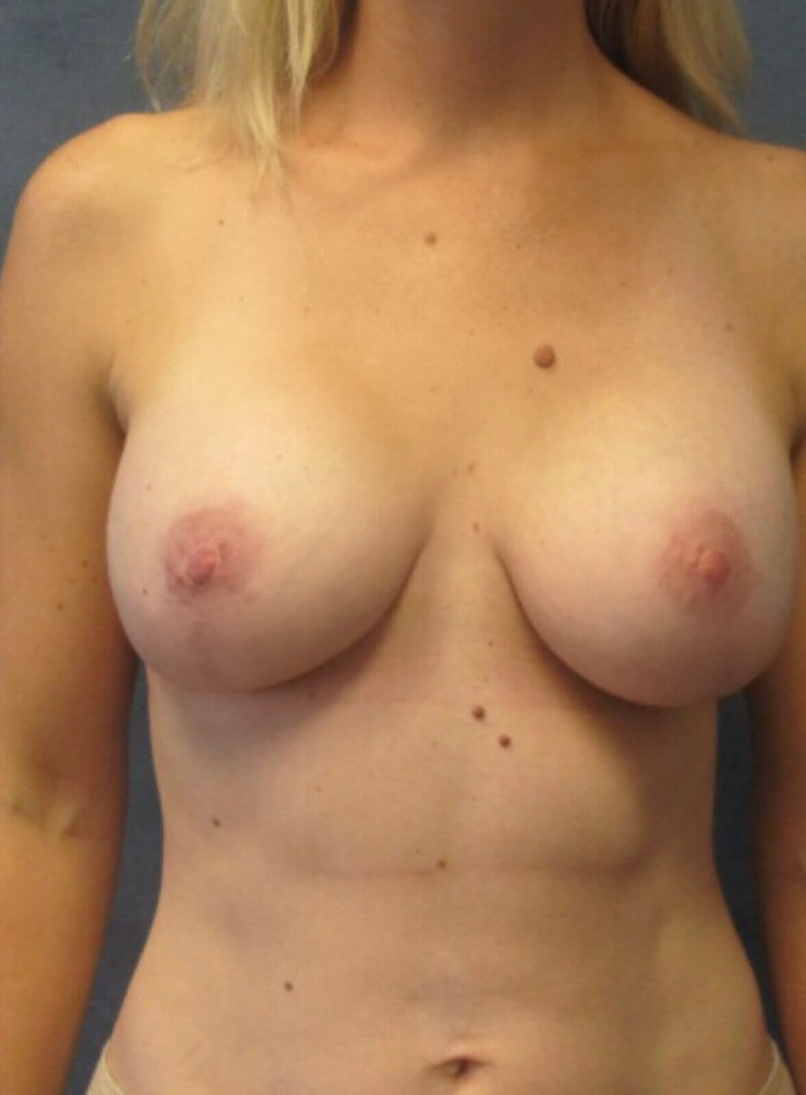 Front BAM with Breast Lift Three Months Post Lift