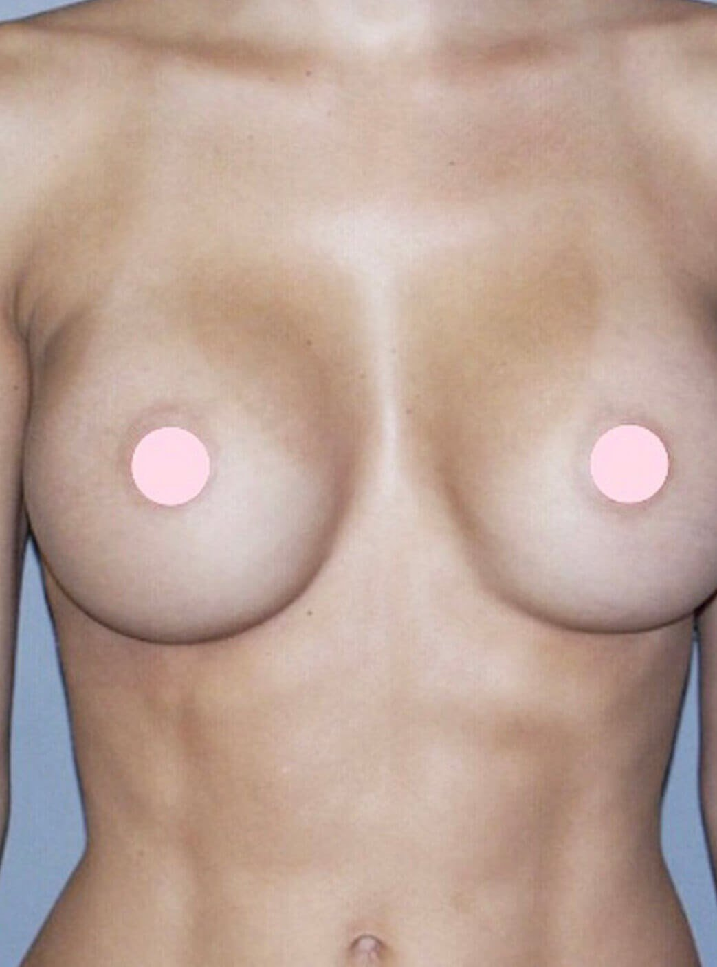 Front View Breast Augmentation After Breast Augmentation