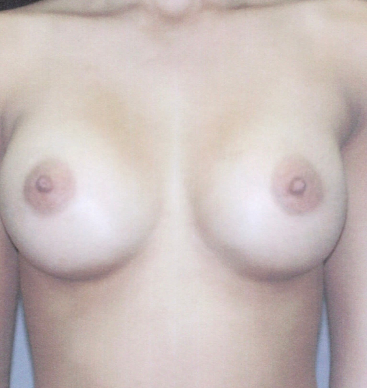 Front View Breast Augmentation 3 Months After