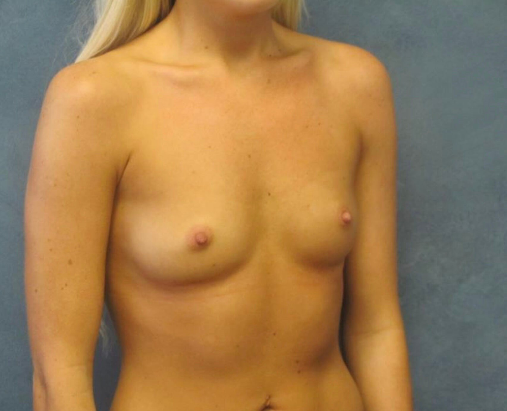 Side View Breast Augmentation Before