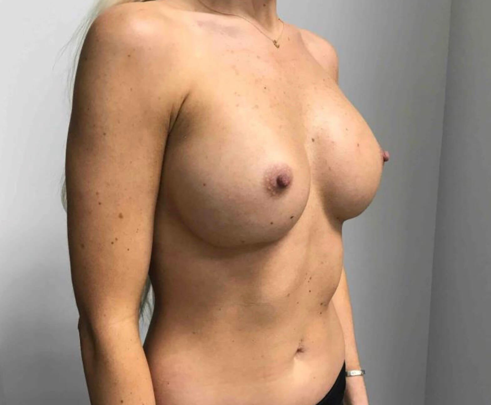Side View Breast Augmentation After
