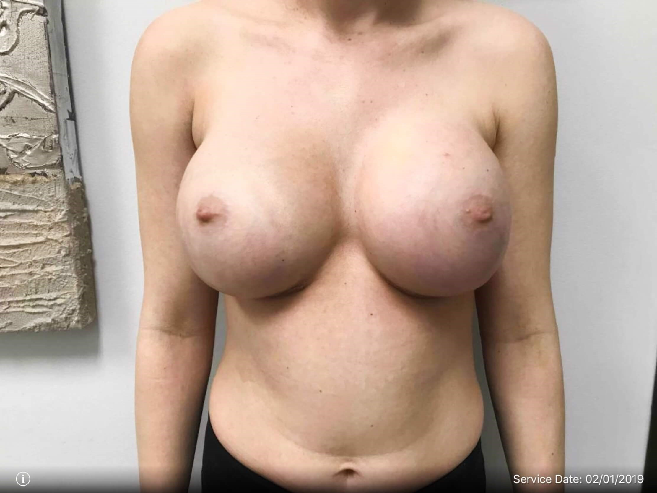 Front View Breast Augmentation 1 Week Post