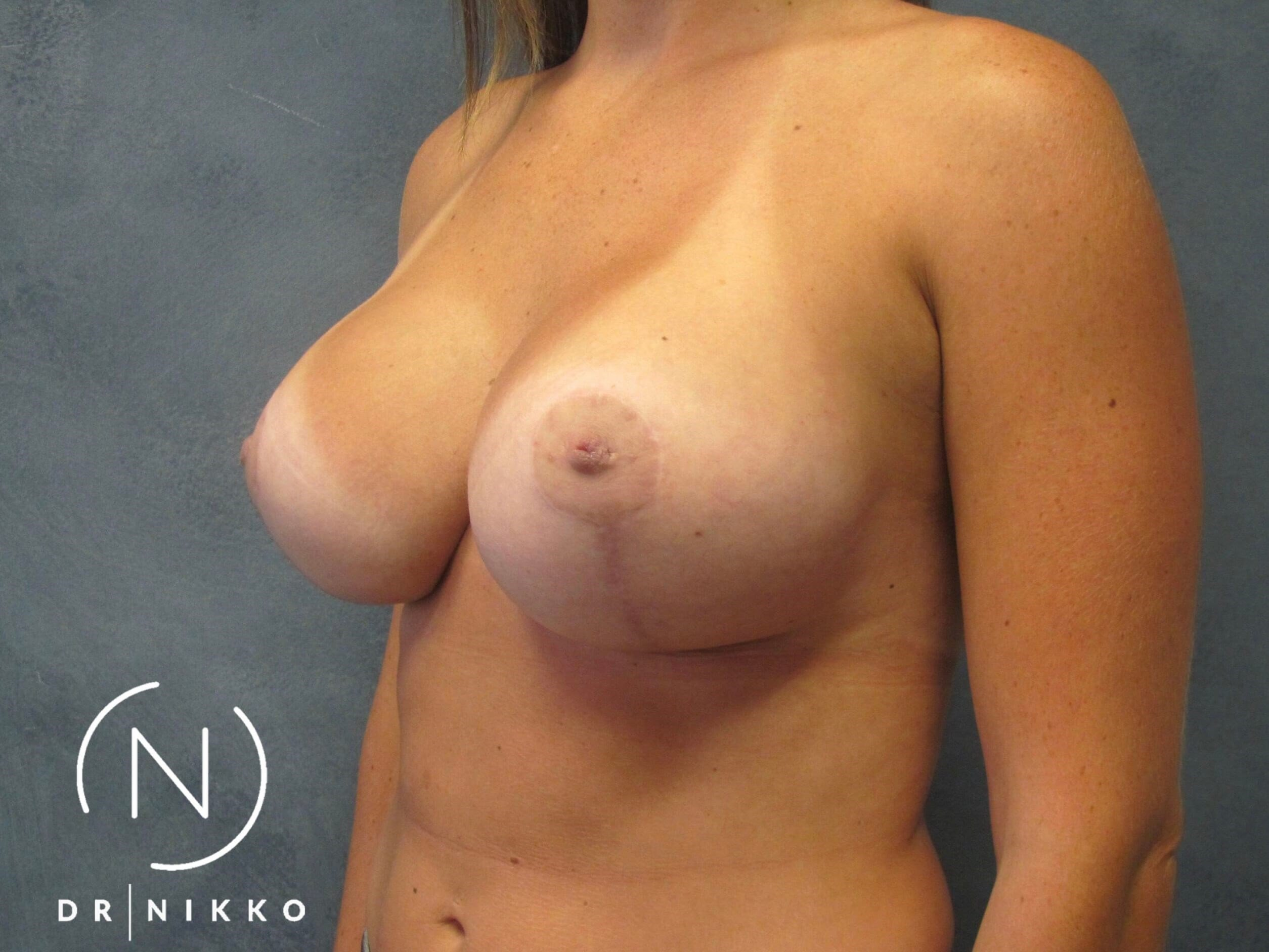 Breast Lift Side Profile After
