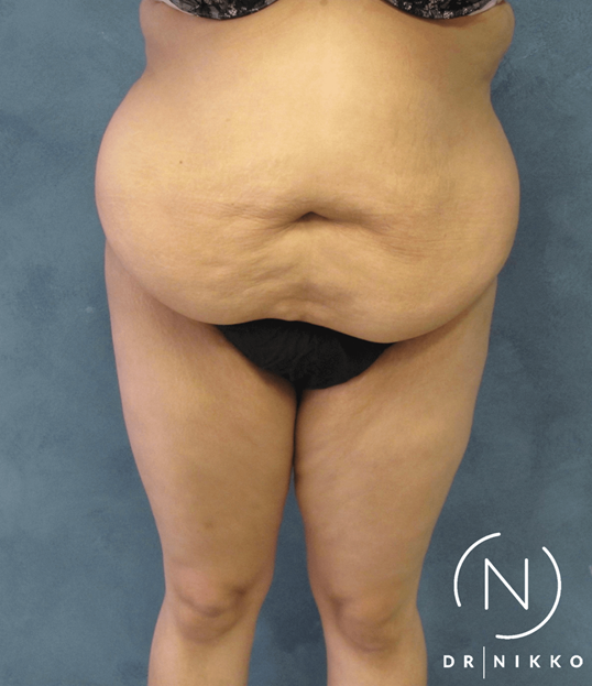 Abdominoplasty Tummy Tuck Before