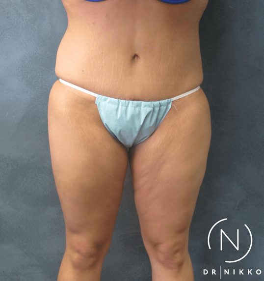 Abdominoplasty Tummy Tuck 3 months Post Procedure