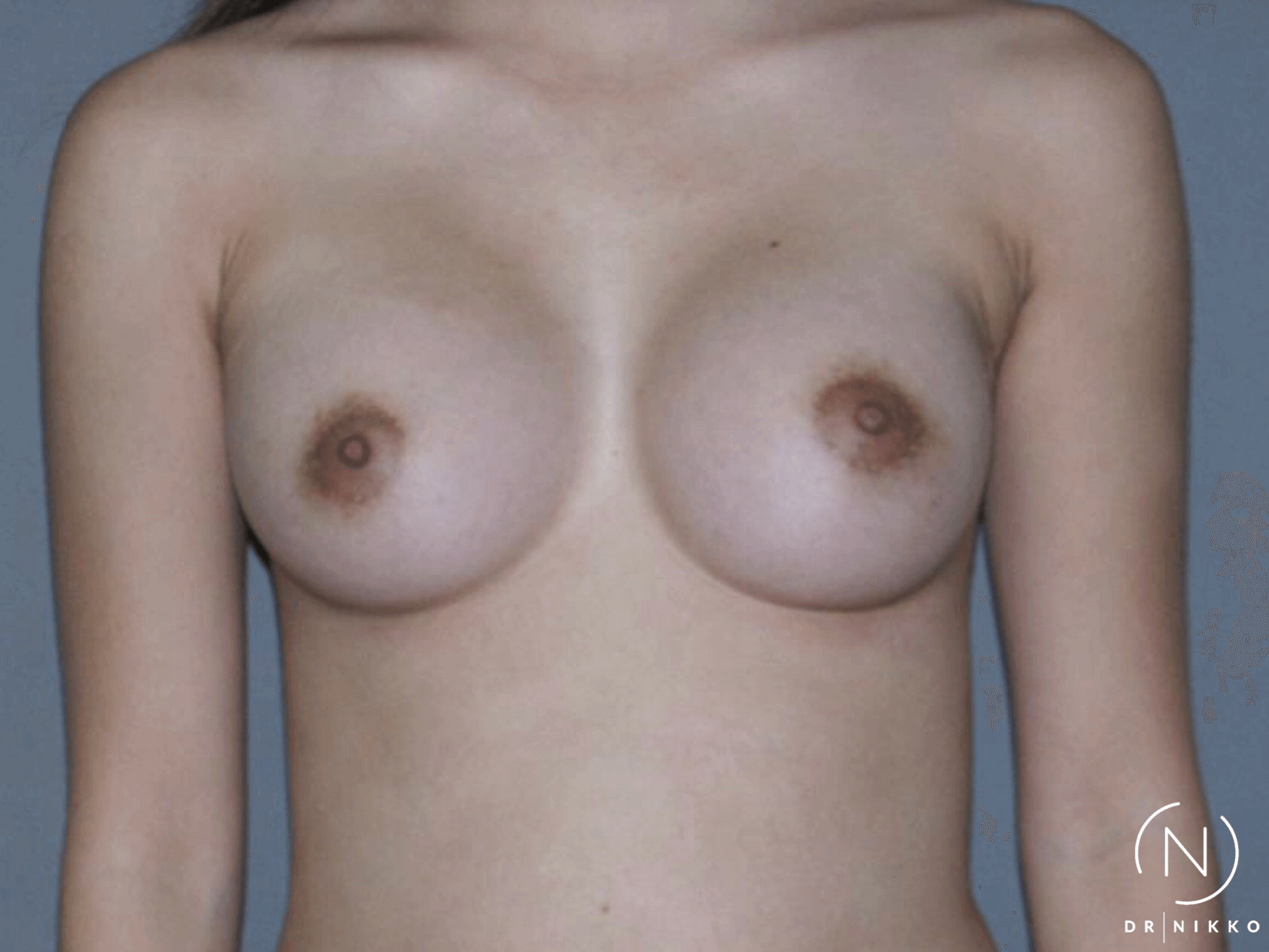 Small Breast Augmentation After