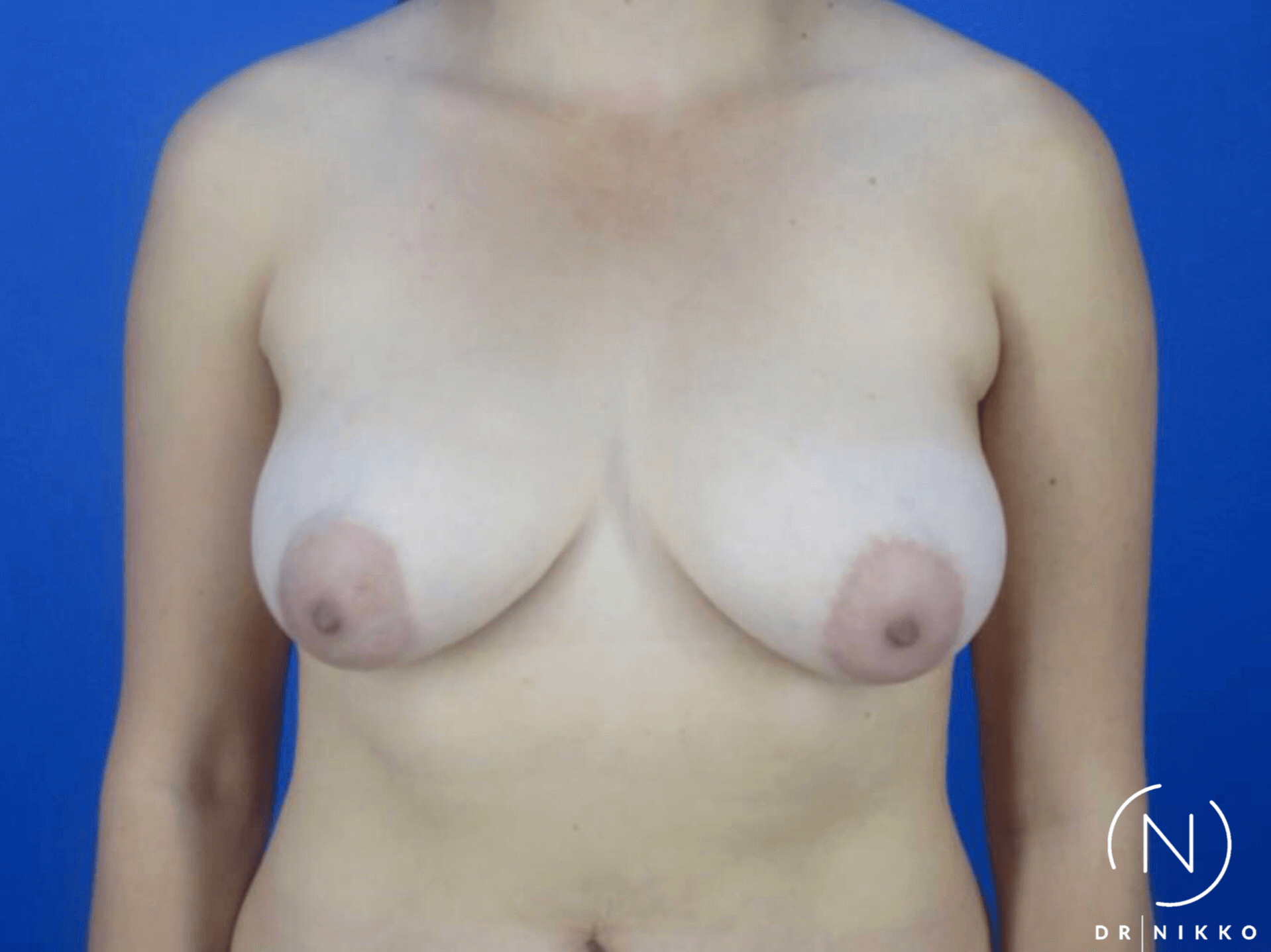 Lift with Augmentation Before