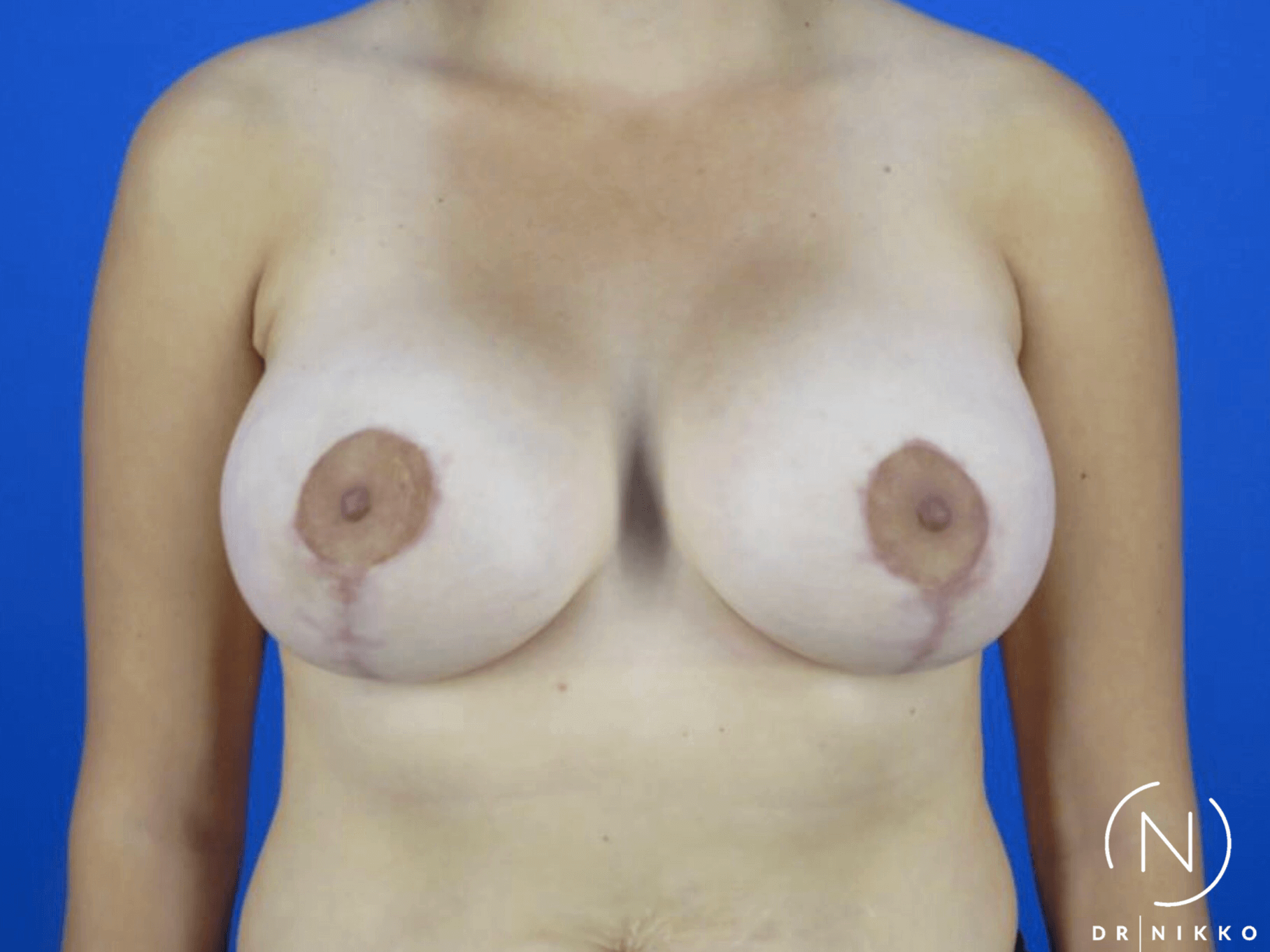 Lift with Augmentation After