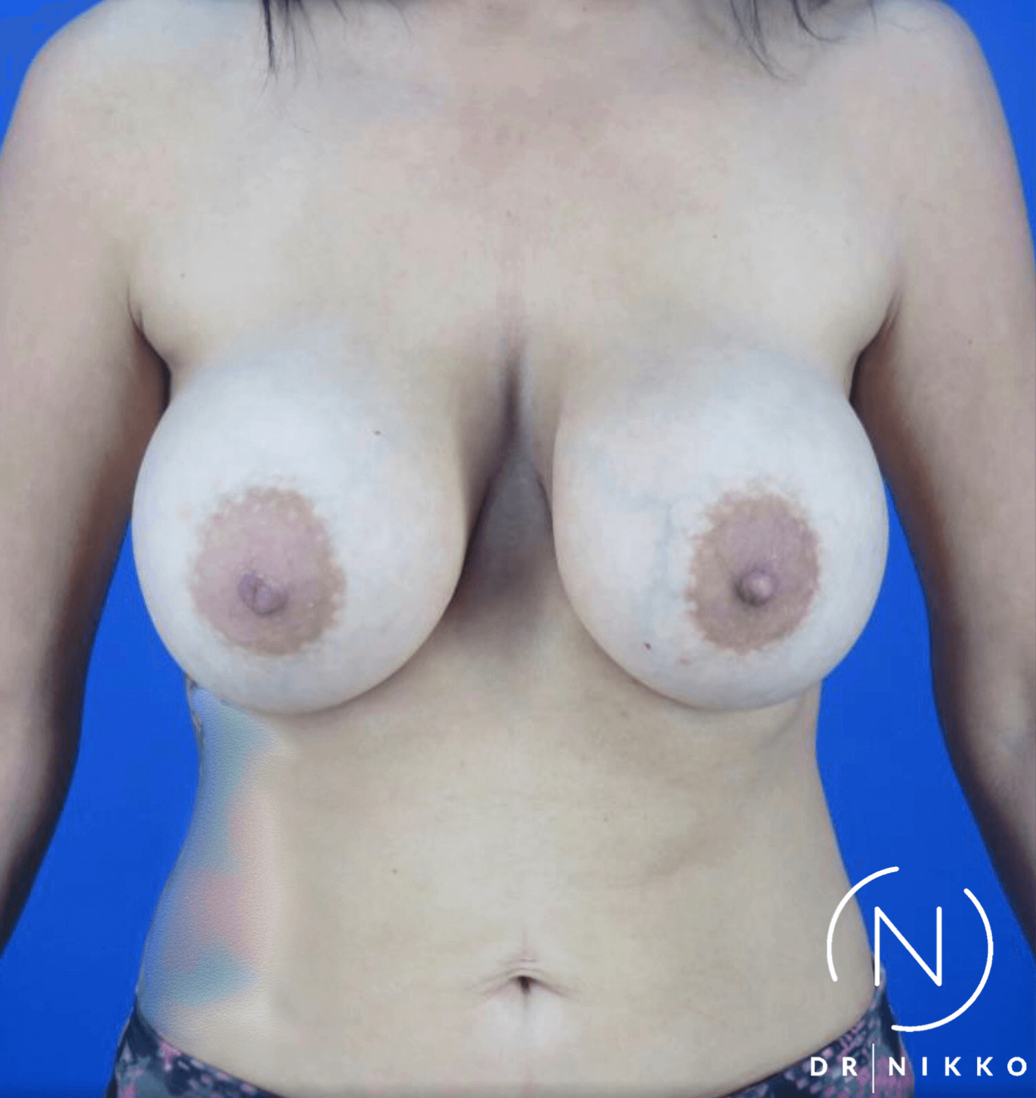 Breast Lift & Capsulectomy Before