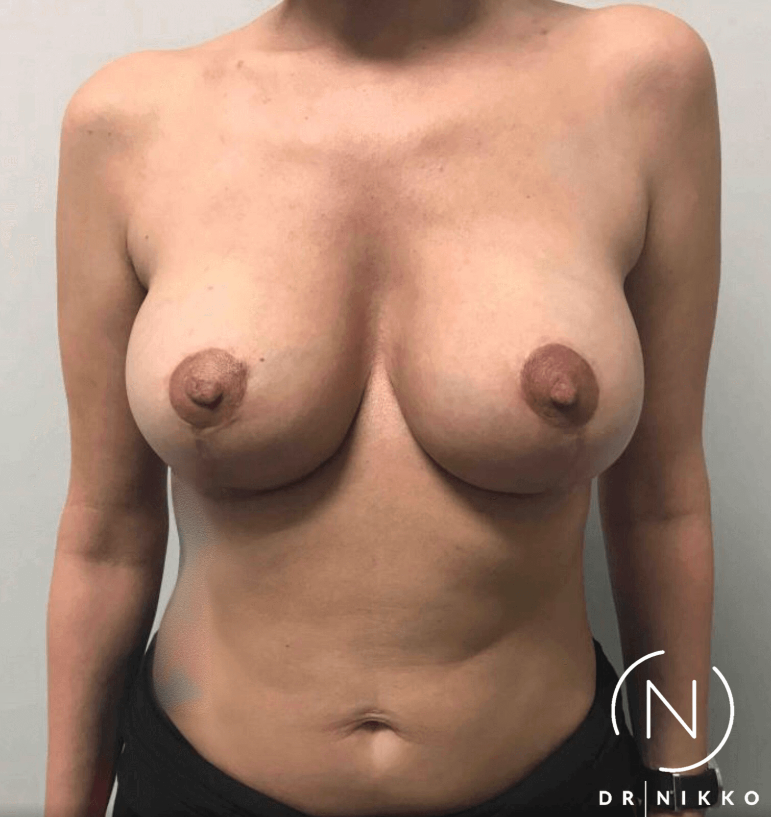 Breast Lift & Capsulectomy After