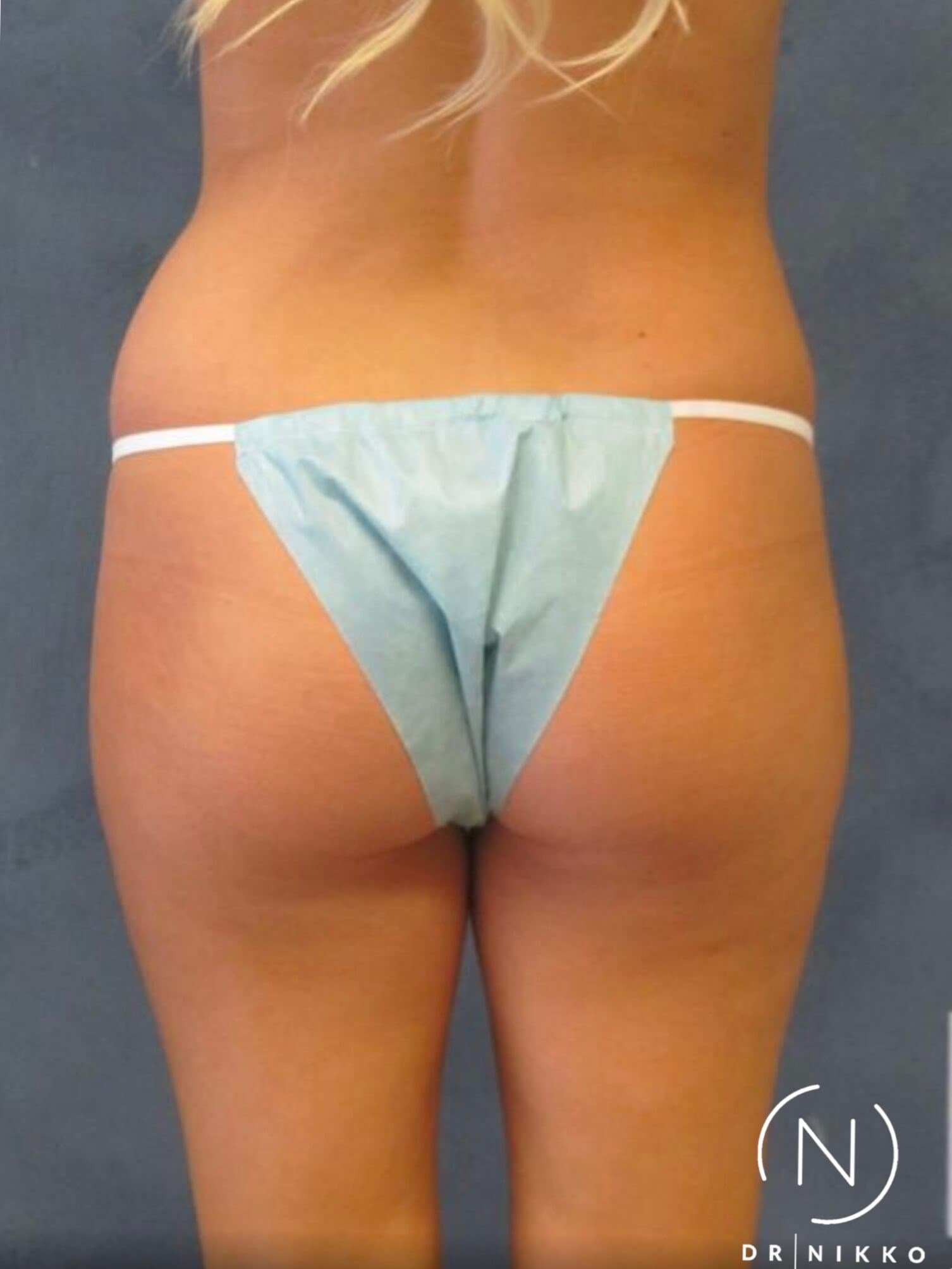 Waist Liposuction Before