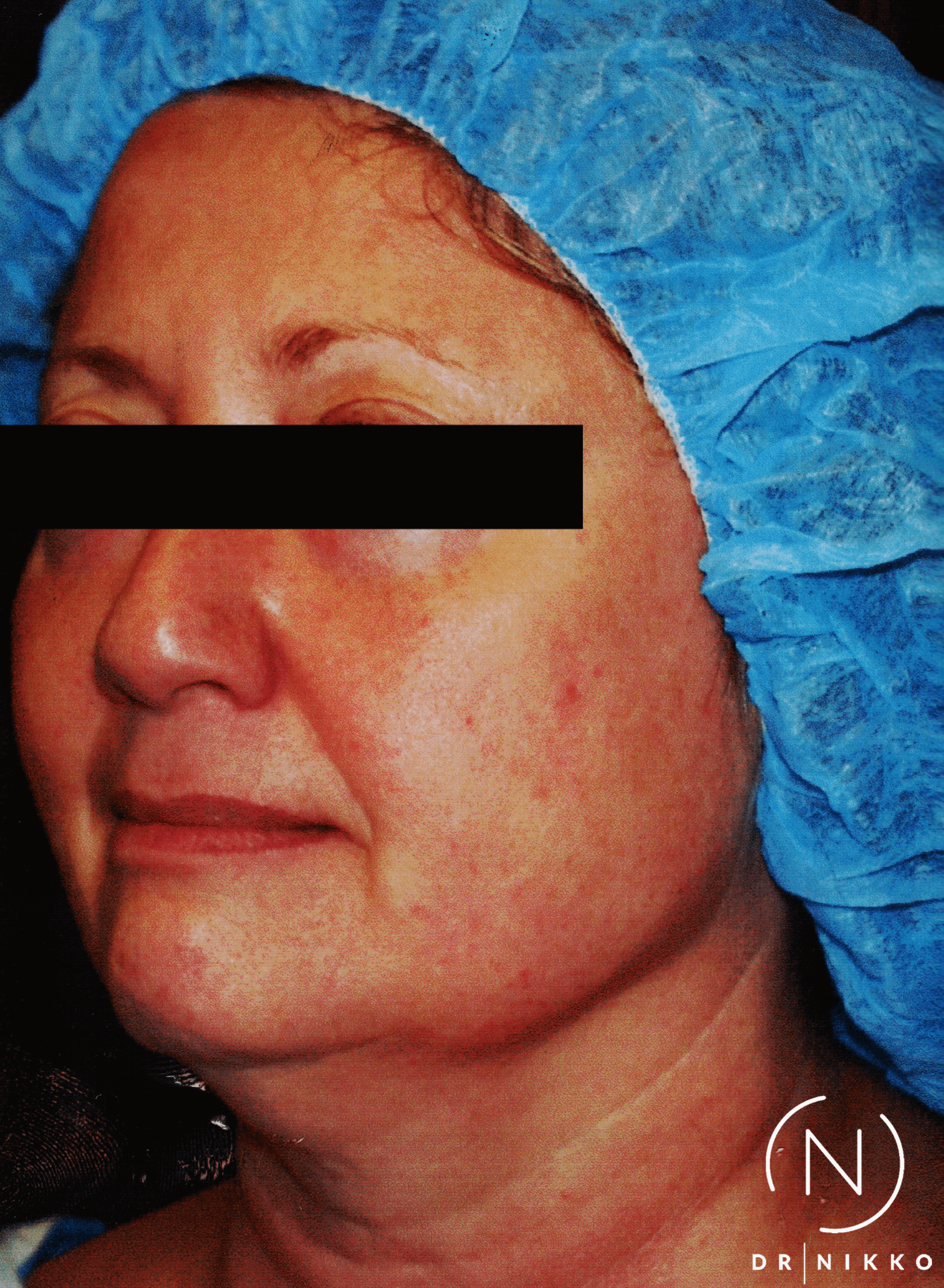 Face Liposuction Before