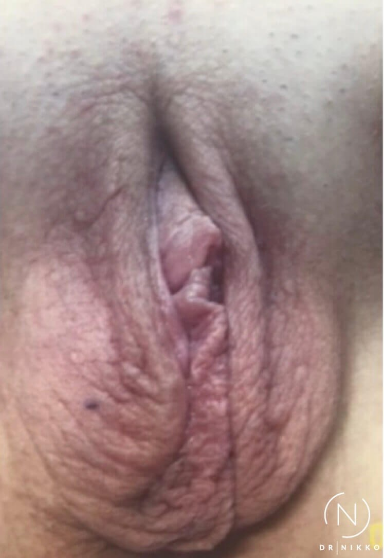 Non-Surgical Vaginal Tightenin Before