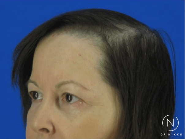 PRP Hair Restoration Before