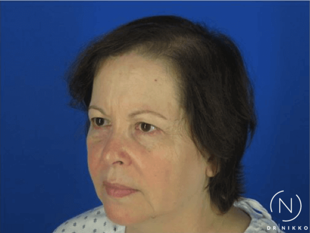 PRP Hair Restoration After