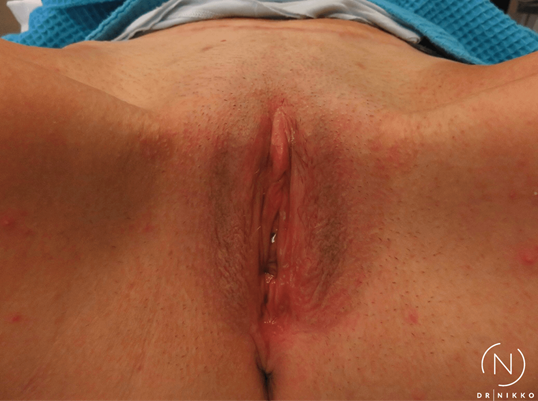 Non-Surgical Vaginal Rejuvenat Before
