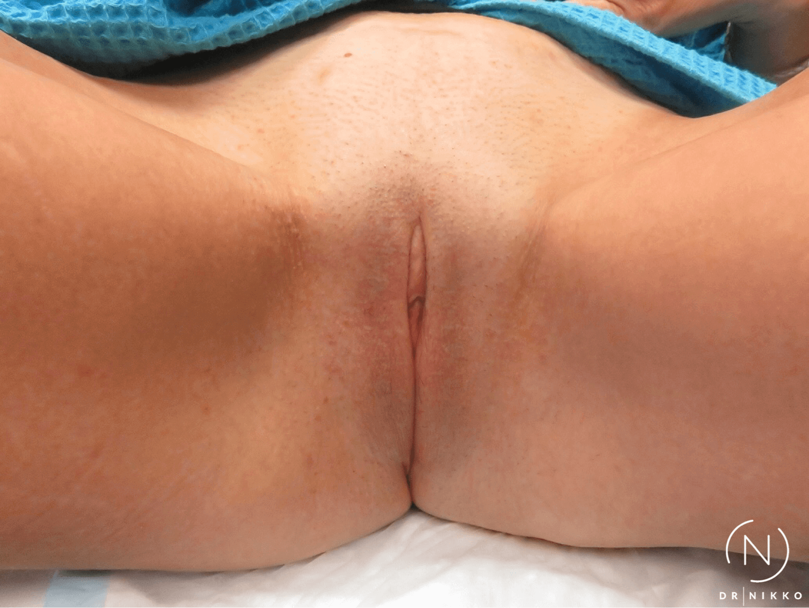 Non-Surgical Vaginal Rejuvenat After 3 Treatments