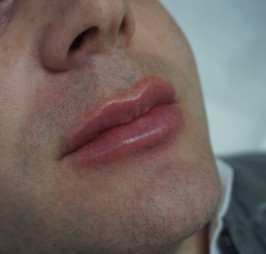 Male Lip Augmentation After
