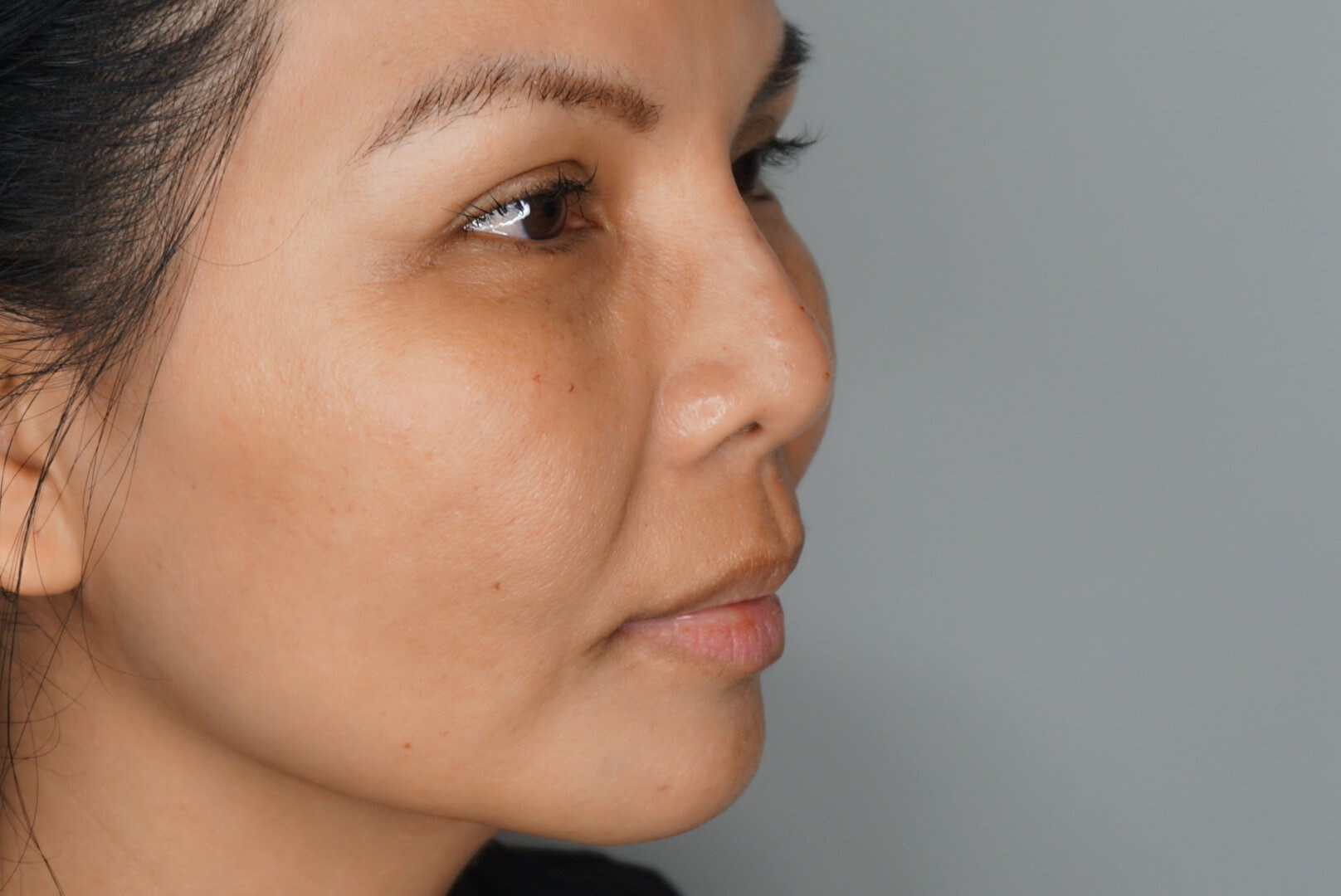 NonSurgical Nose Augmentation Before