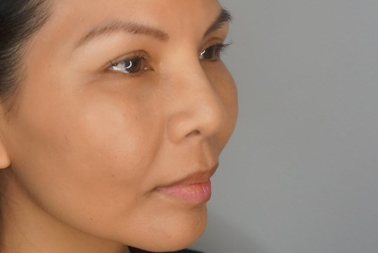 NonSurgical Nose Augmentation After