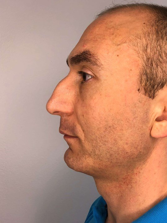 NonSurgical Rhinoplasty Before