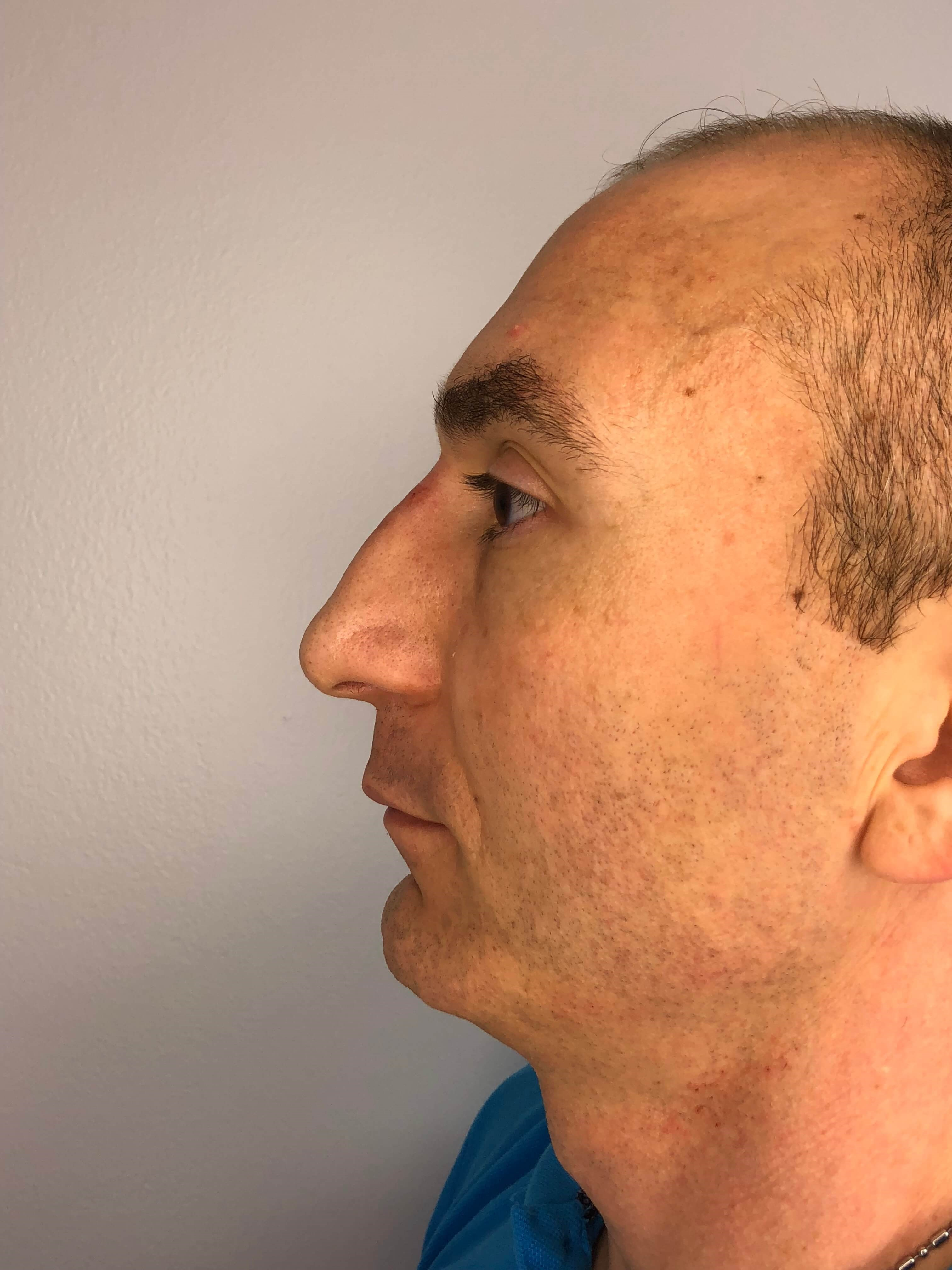 NonSurgical Rhinoplasty After