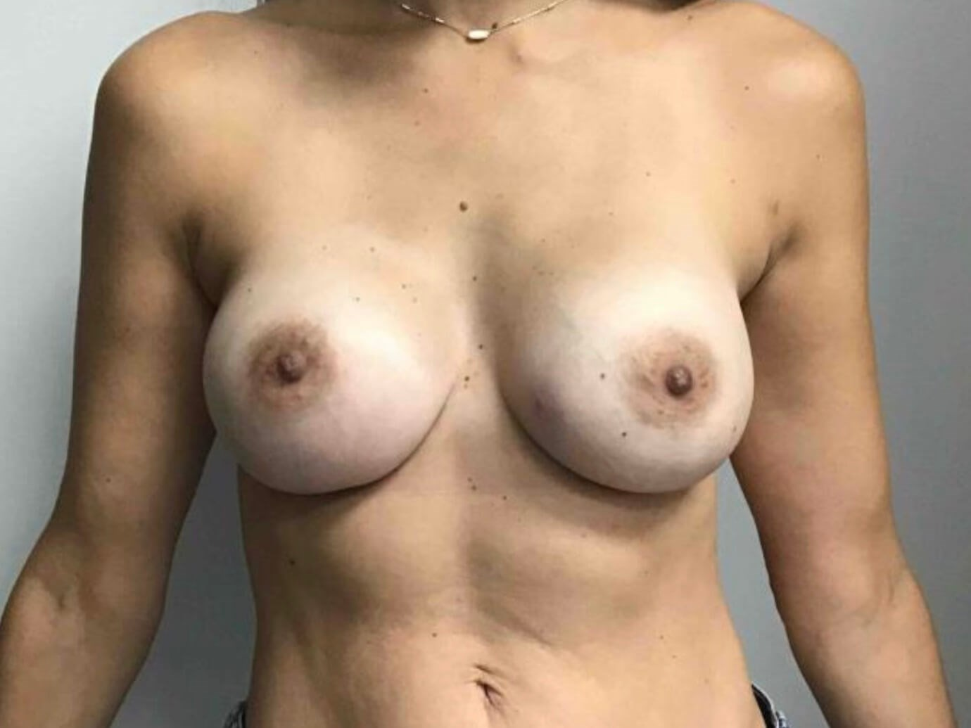 Breast Aug After