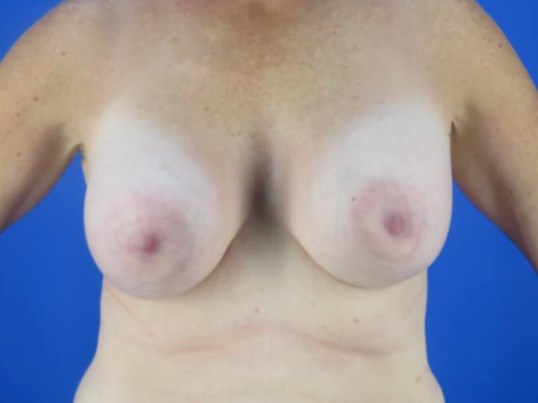 Breast Revision by Dr Nikko Before