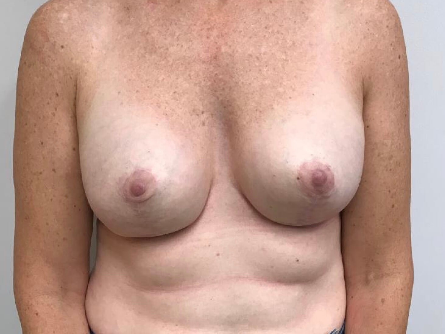 Breast Revision by Dr Nikko After