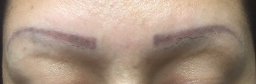 Eyebrow Hair Transplantation Before