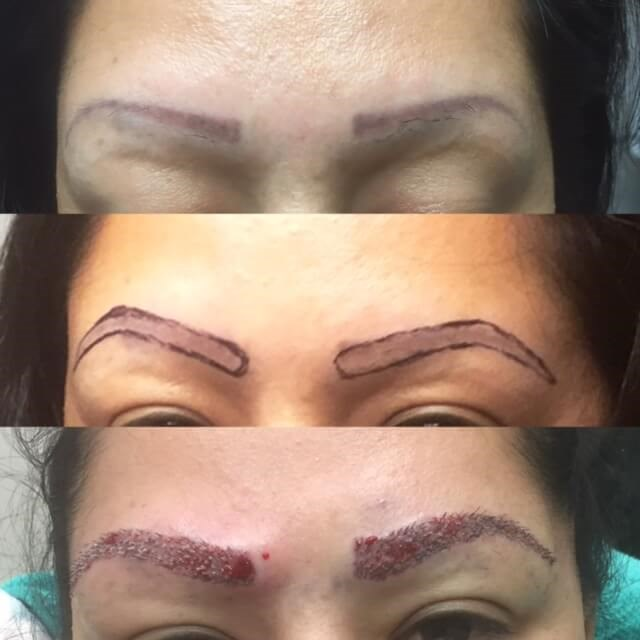 Eyebrow Transplantation Before, with markings, after