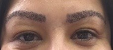 Eyebrow Transplantation Three Days After