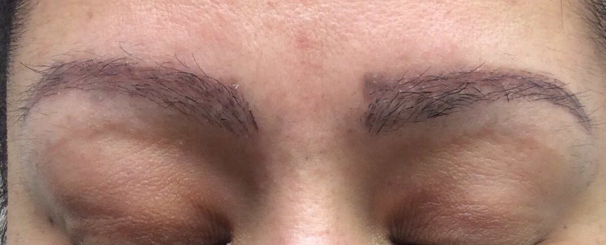 Eyebrow Hair Transplantation 3 Months After